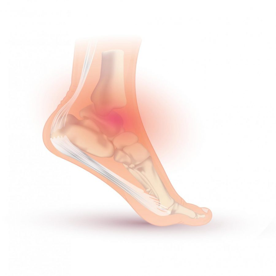 Ankle sprains are a very common injury